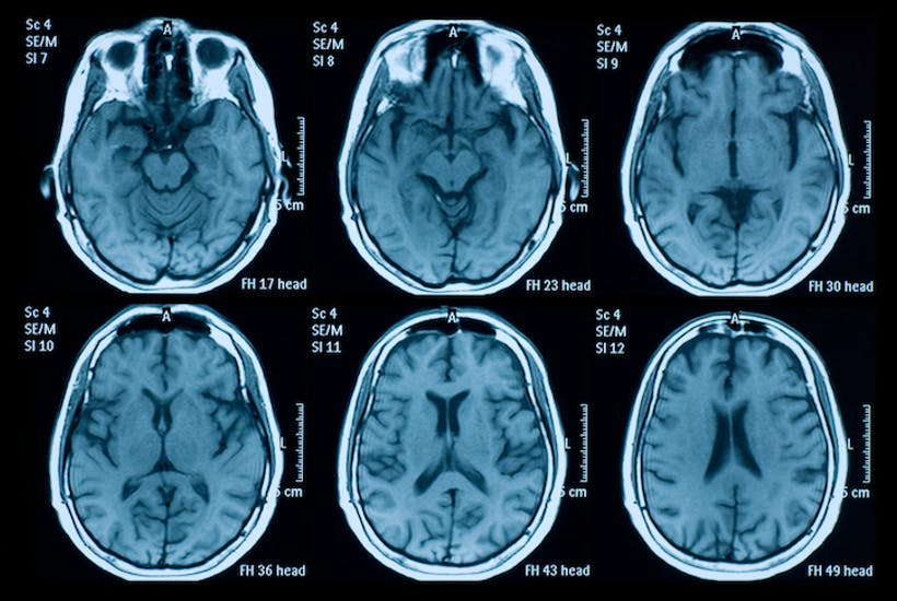 magnetic resonance images of brains in mri scans - stock photo