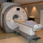 MRI brain scan – elevated prolactin