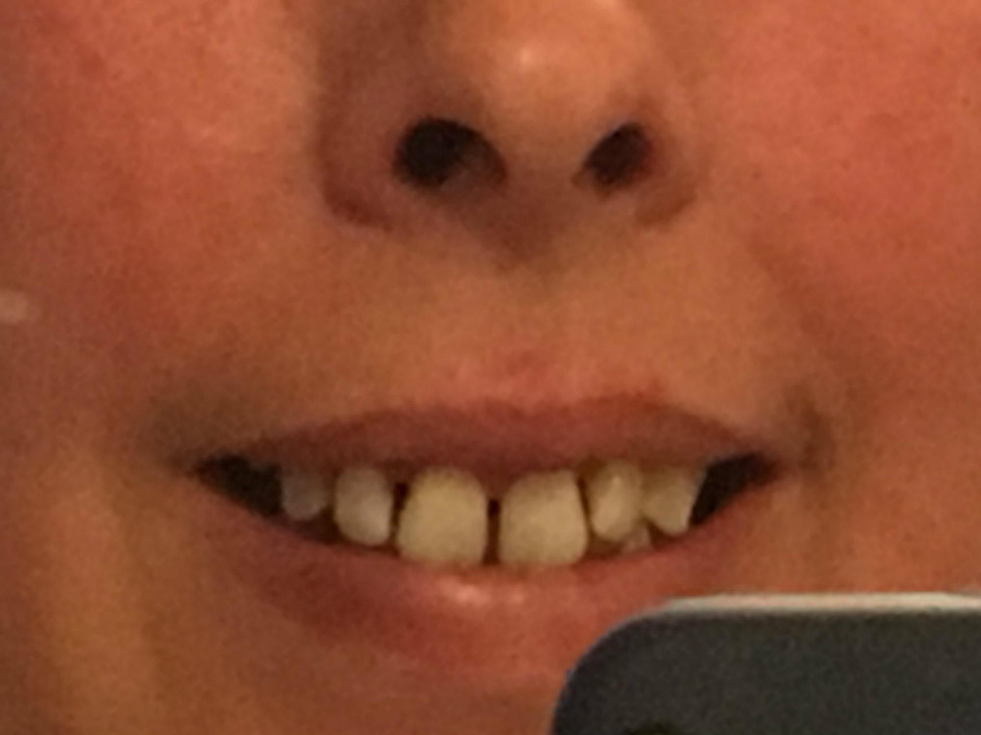 teeth and bits